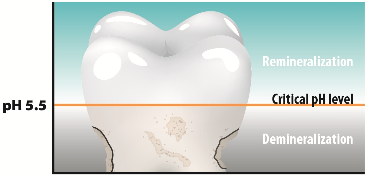 Protect Yourself From Tooth Decay: pH Neutralization | CariFree