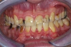 Patient with saliva issues