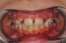 Jack teeth photo