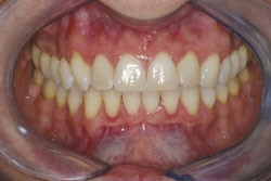 Mary teeth close up