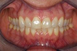 Sheila teeth closeup